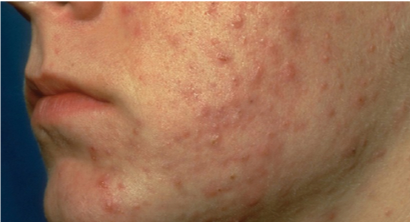 acne papules and pustules