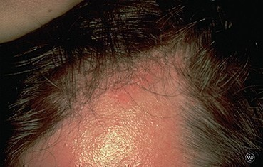 seborrheic-dermatitis-symptoms_reddish_patch.jpg